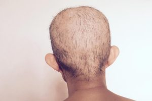 effects_of_chemotherapy_big