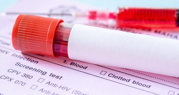 Cancer prevention Tests and Screenings
