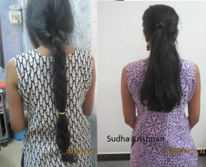 sudha-krishnan-pre-post