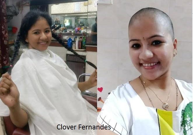 Clover Fernandes