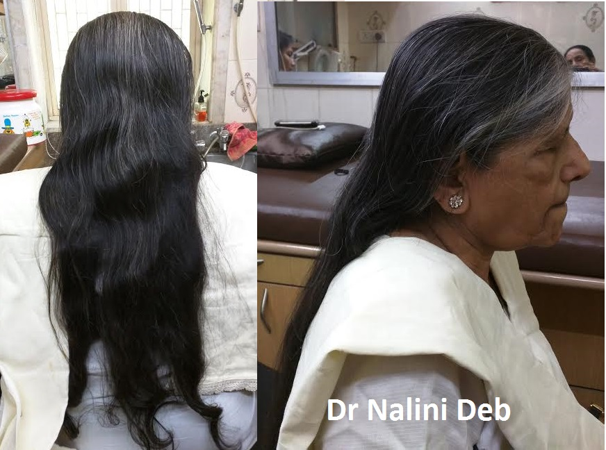 Dr Nalini Deb